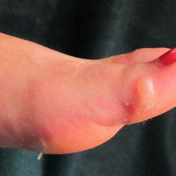 Camino de Santiago first aid blister